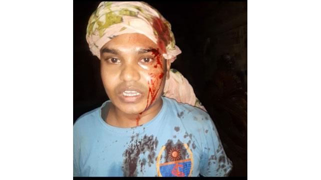 টেকনাফ বাহারছড়ায় সন্ত্রাসী হামলায় দুই বিশ্ববিদ্যালয় ছাত্র আহত |সি কক্স নিউজ