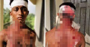 খরুলিয়ায় সন্ত্রাসীদের চাপাতির কোপে ঢাবি শিক্ষার্থী গুরুতর আহত | ChannelCox.com